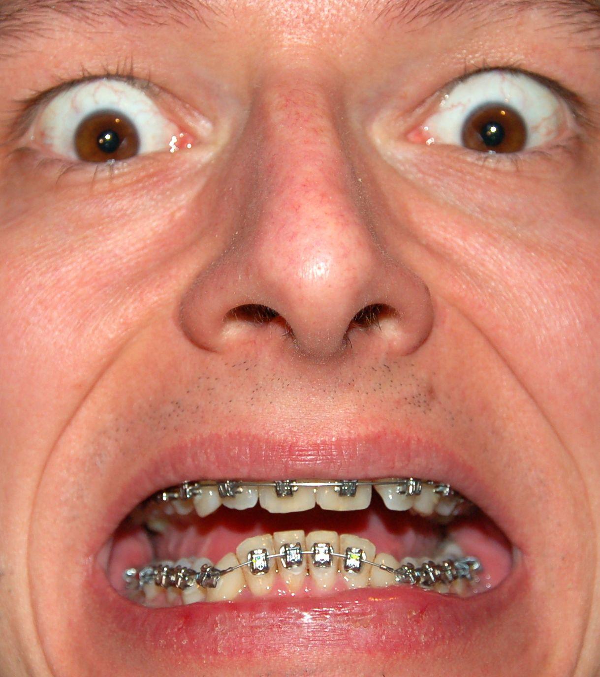 Il trattamento di pigmentary senile nota su una faccia